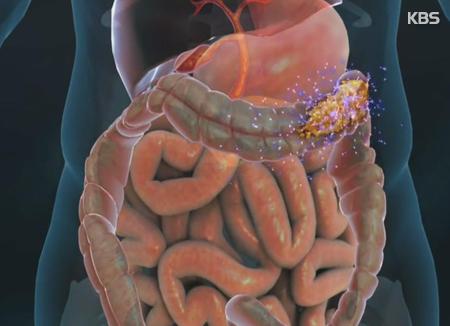 أعراض متلازمة القولون العصبي وطرق الوقاية منها
