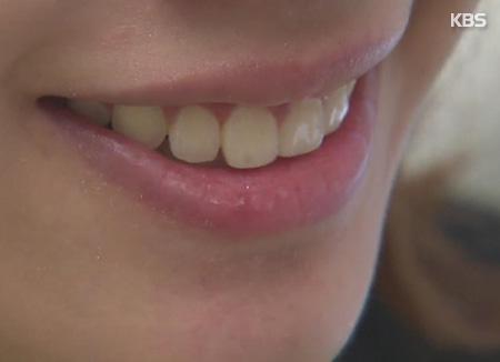 بعض الأطعمة التي تسبب تلون الأسنان