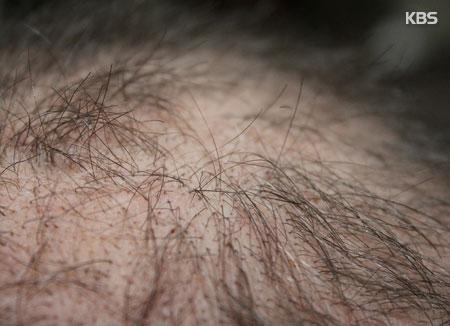 نصائح للحد من تساقط الشعر في بداية فصل الخريف
