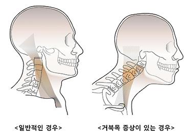 """'거북목' 환자 2배 급증···""""스마트폰이 주범"""""""
