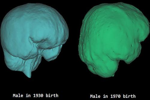 유럽 200년 걸린 두개골 확장, 한국은 40년만에 ...왜?
