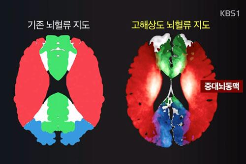 Científicos surcoreanos logran mapear en alta resolución el flujo sanguíneo cerebral