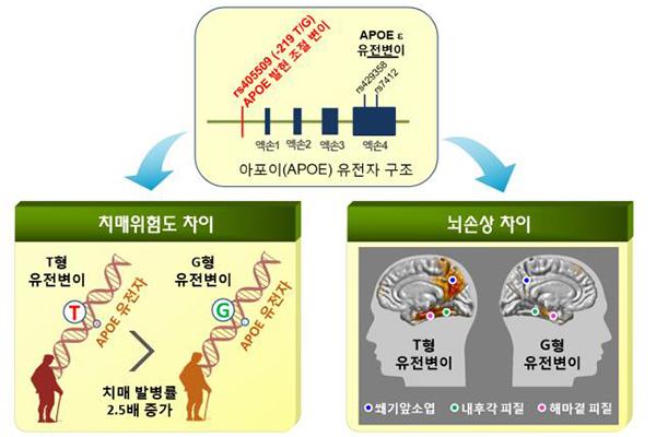 Alzheimer : une forte prévalence de la maladie chez les sud-Coréens