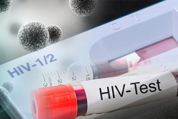 VIH/sida : les infections liées au rapport homosexuel supérieures à celles par acte hétérosexuel