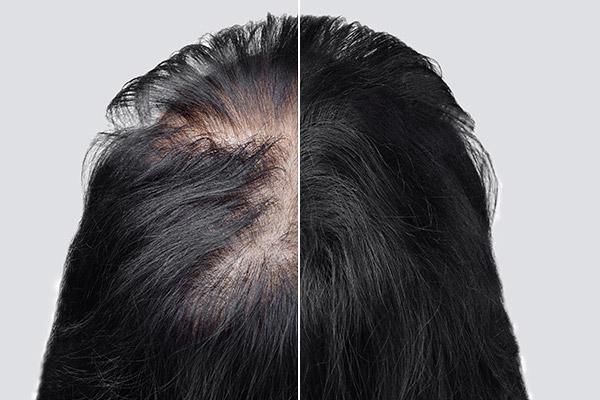 Le marché des implants de cheveux explose en Chine