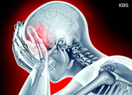추운 겨울철에 주의해야할 뇌졸중 예방법