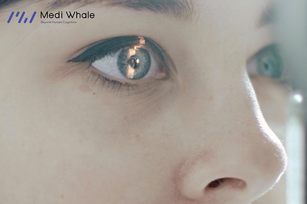 Medi Whale, a Developer of AI Technology that Uses Eye Images to Identify Health Risks