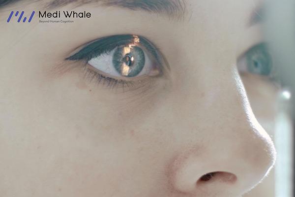 Perusahaan Rintisan untuk Diagnosis Kesehatan Berbasis Citra Retina Mata, Medi Whale