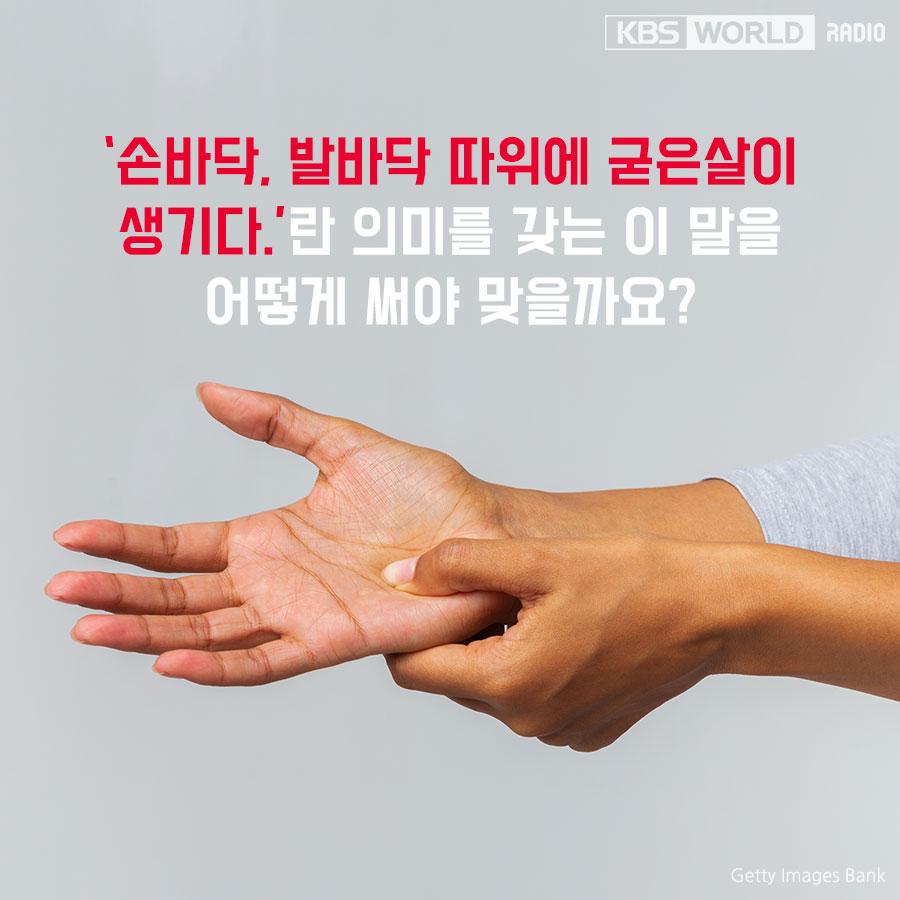 손바닥에 굳은살이  _____.